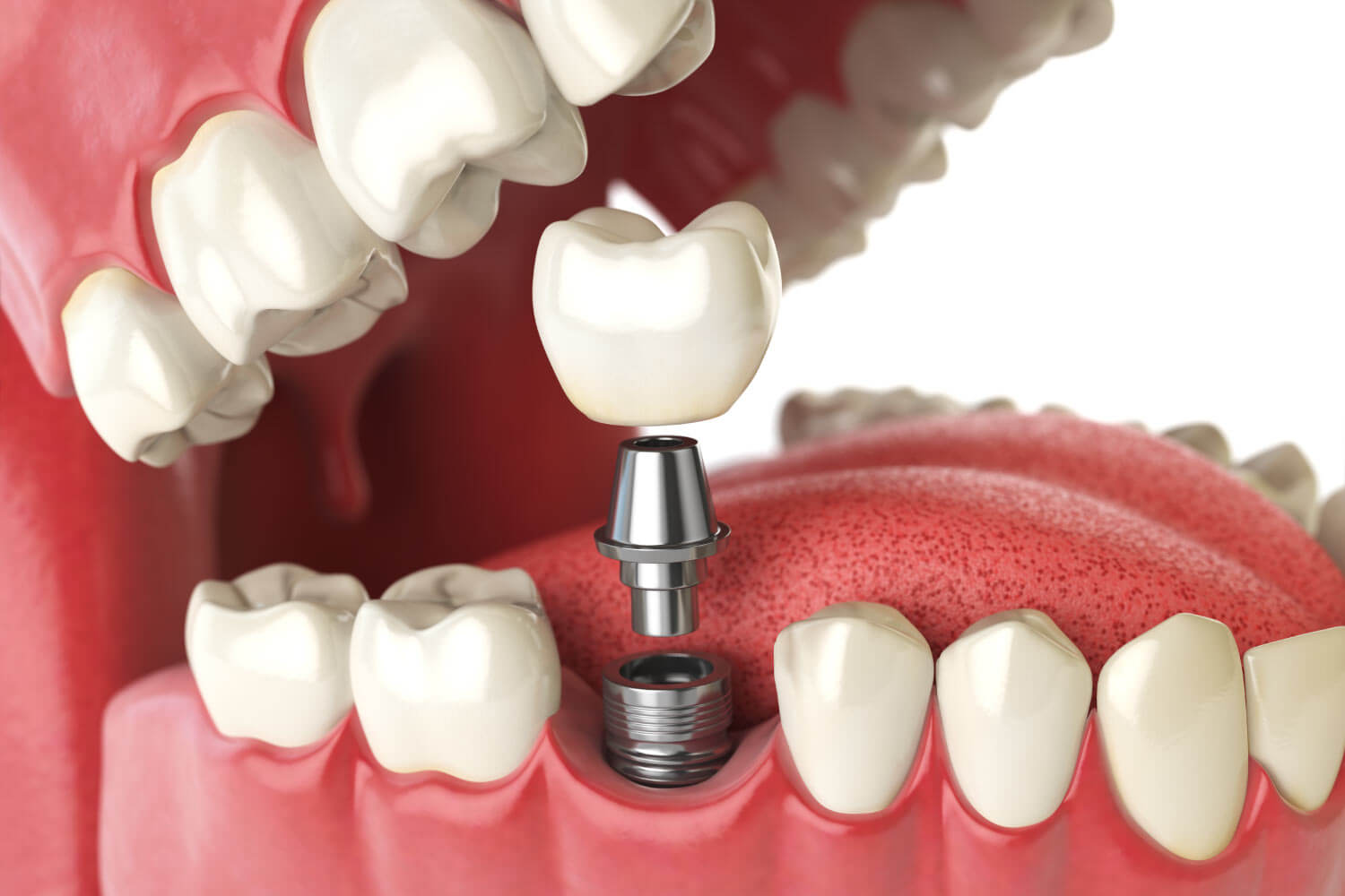Closeup of a dental implant to replace a missing tooth